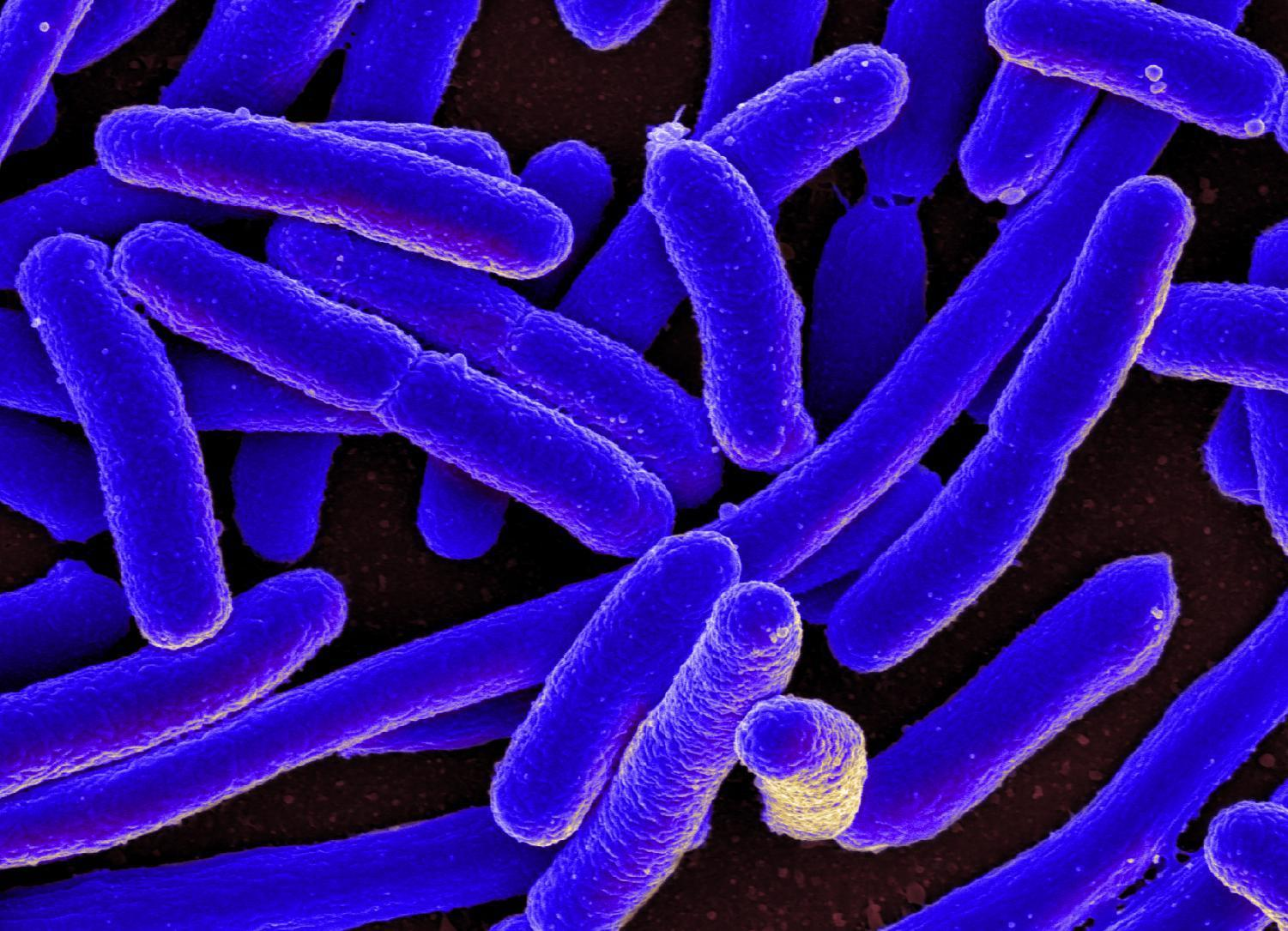 Colorized scanning electron micrograph of E. Coli bacteria. NYUAD students' have created an affordable device that detects E. Coli in twenty minutes.